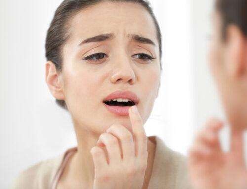 Afte bucale: de ce apar și cum scapi de ele